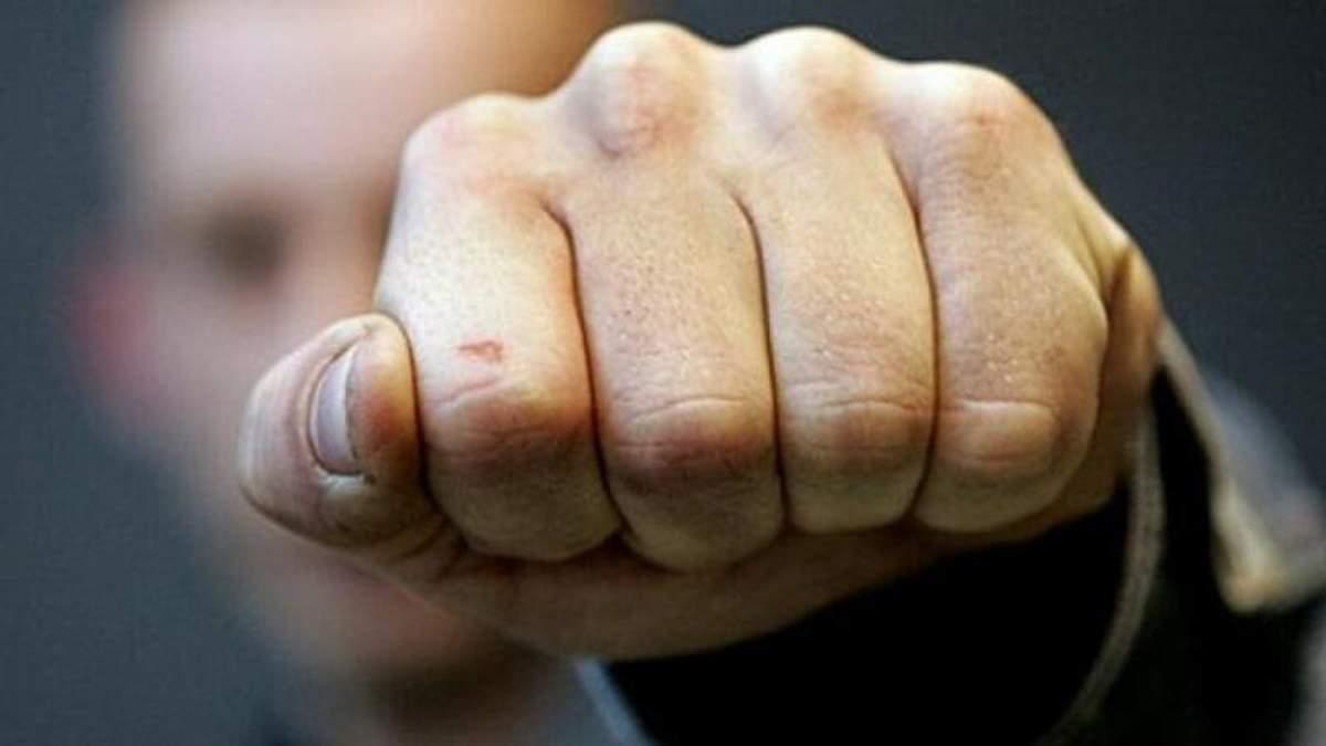 На Київщині чоловік напав на депутата: деталі інциденту