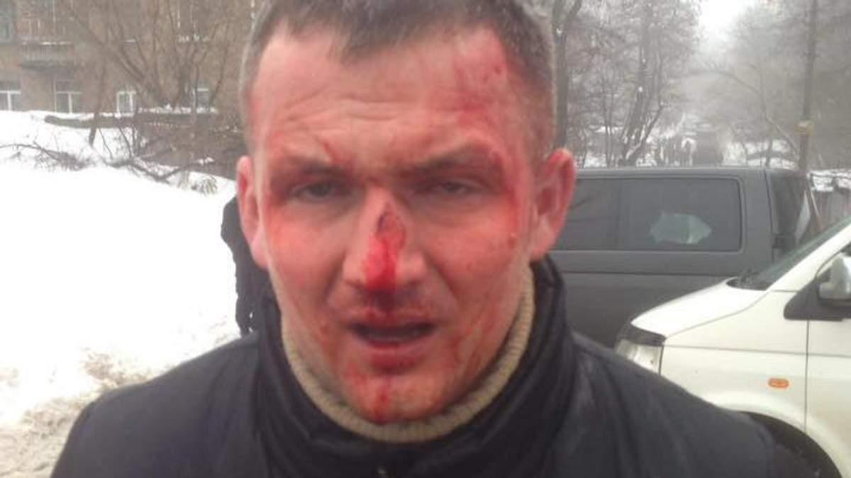 Нардеп Левченко после избиения