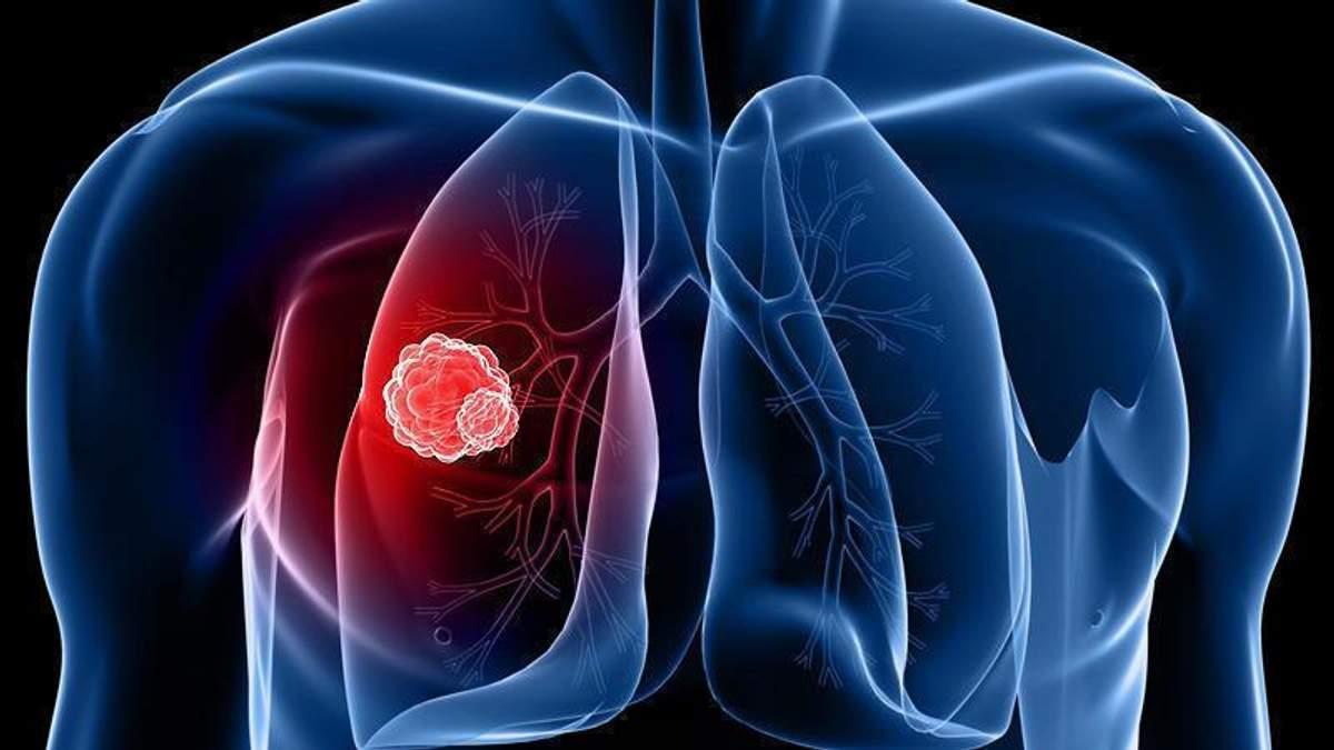 Парламент долучився до відзначення Всесвітнього дня боротьби з туберкульозом