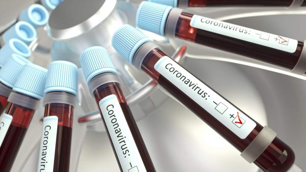 У Києві виявили нові 4 випадки зараження коронавірусом: тепер у столиці 28 інфікованих